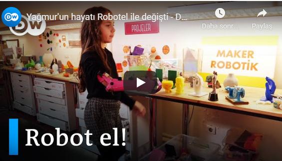 Robotel Türkiye'nin ilk vakalarından, göz bebeğimiz Yağmur'dan teknolojinin insan hayatına dokunan hikayesini @ozanonat aracılığıyla @dw_turkce videosunda izlemek, tebessümüne eşlik etmek ister misiniz? #SosyalFayda için #Teknoloji #3dprint #Robotel